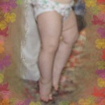 Ребенок ходит на носочках. Лечить или не обращать внимание?